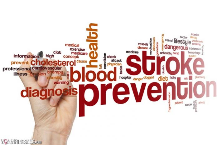 Learn the Top Ways to Prevent a Stroke Today