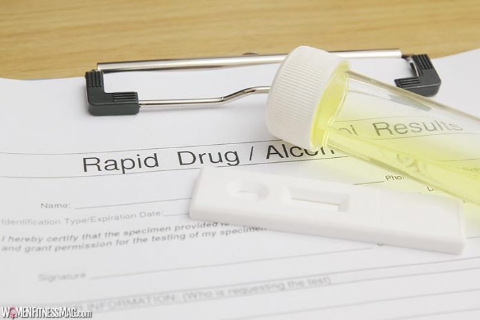 What Is an Alcohol Urine Test?