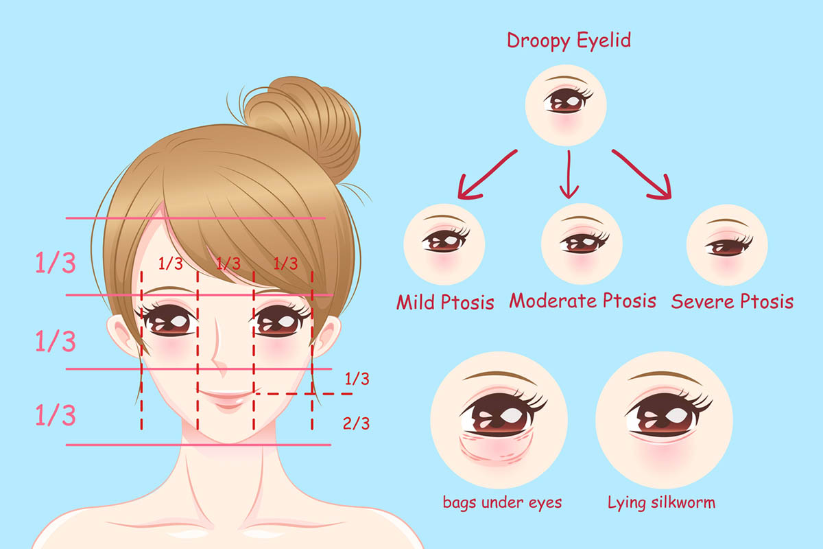3 Degrees of Ptosis