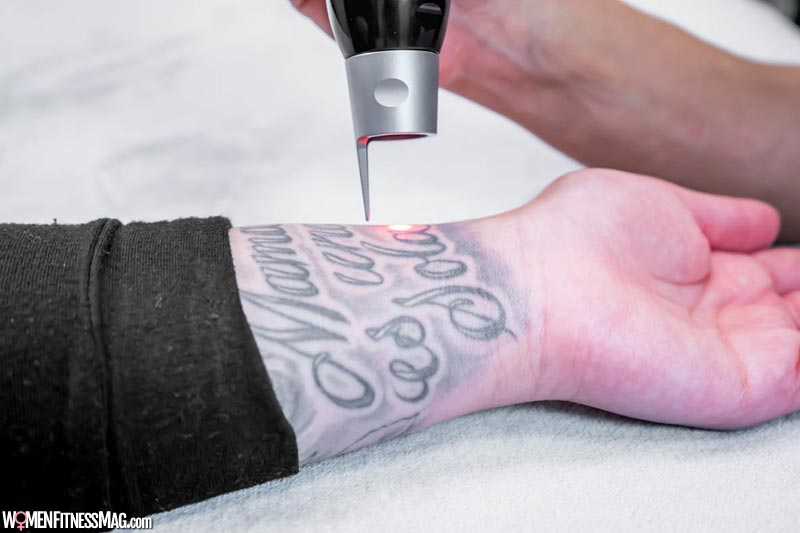 Pico lasers and tattoo removal