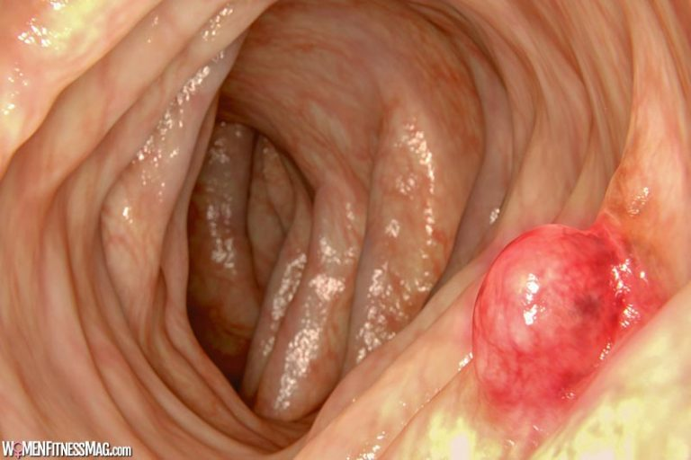 6 Steps to Consider When Diagnosed With Colorectal Cancer