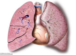 Travel Safely with Pulmonary Embolism