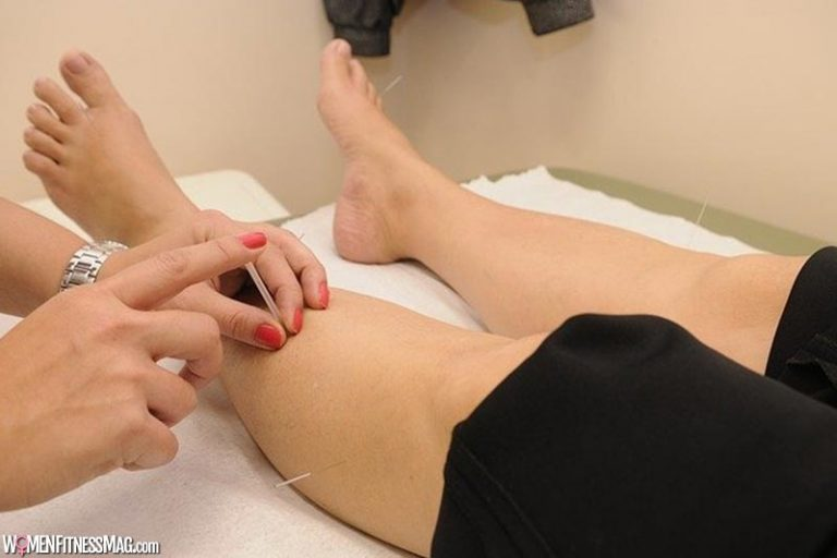 Acupuncture And Pregnancy: What To Expect