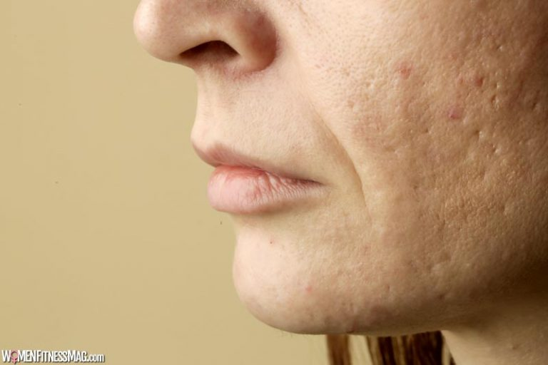 Dermatologist-Approved Treatments For Acne Scars