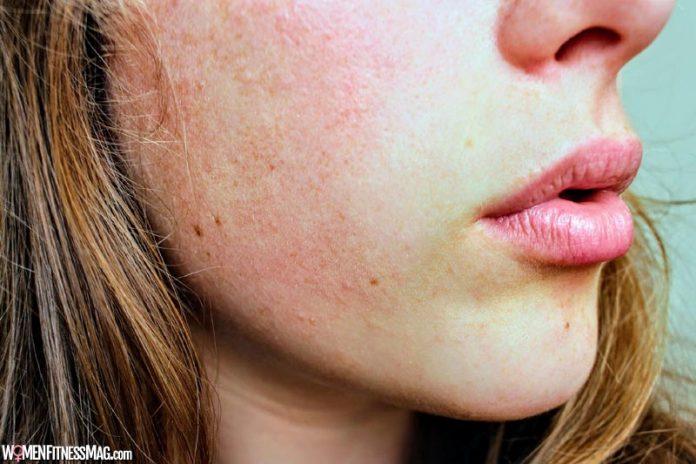 Eczema - Atopic Dermatitis Natural Treatment