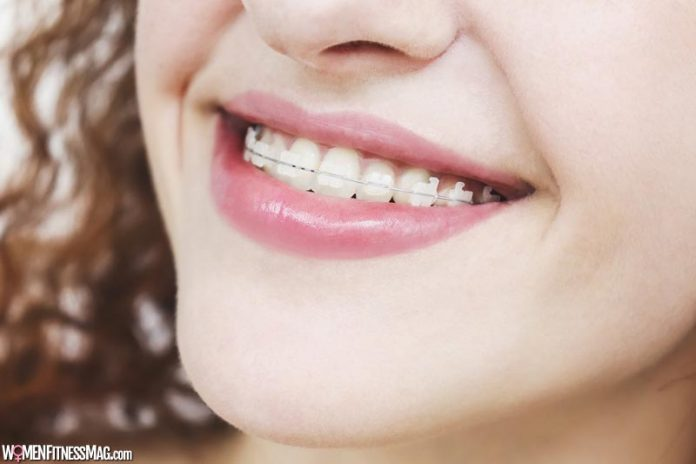 Here's How Getting Braces Won't Affect Your Modelling Career