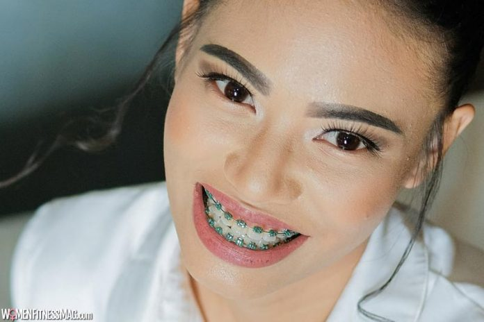 How To Know If You Need Braces