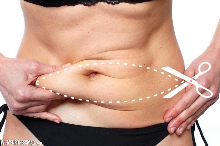 A Tummy Tuck Zaps Away Stubborn Belly Fat