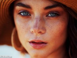 7 Reasons Why Chronic Skin Condition Treatments Require Expertise