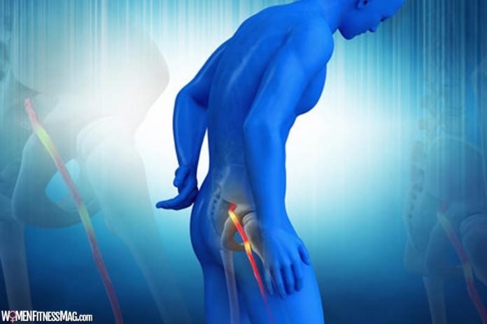 Say No Returning to Sciatica Pain - Helpful Remedies