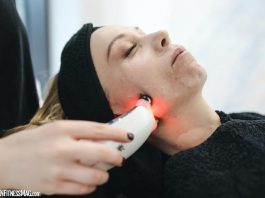 IPL Laser Carlsbad: Here's What You Should Know Before The Procedure