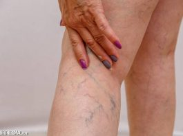 Home Remedies That Can Elevate Varicose Veins