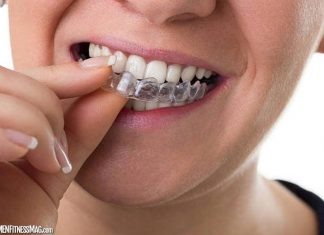 How to Achieve the Best Results from Teeth Aligners