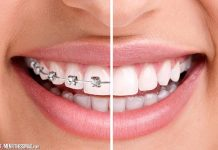 4 Tell-Tale Signs To Undergo Orthodontic Treatment