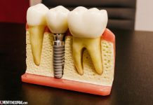 Are Dental Implants Safe? Learn the Advantages and Risks